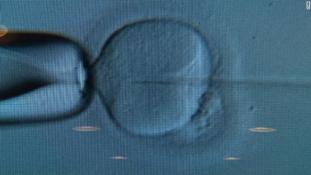 120112034613-ivf-lab-embryo-boston-story-top