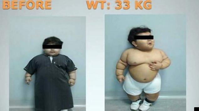 The unnamed Saudi Arabian boy underwent bariatric surgery after he continued to gain weight despite medicine and a strict diet.  Read more: http://www.nydailynews.com/life-style/health/boy-2-undergoes-weight-loss-surgery-article-1.1462531#ixzz2fTE7T46X  NEW YORK DAILY NEWS