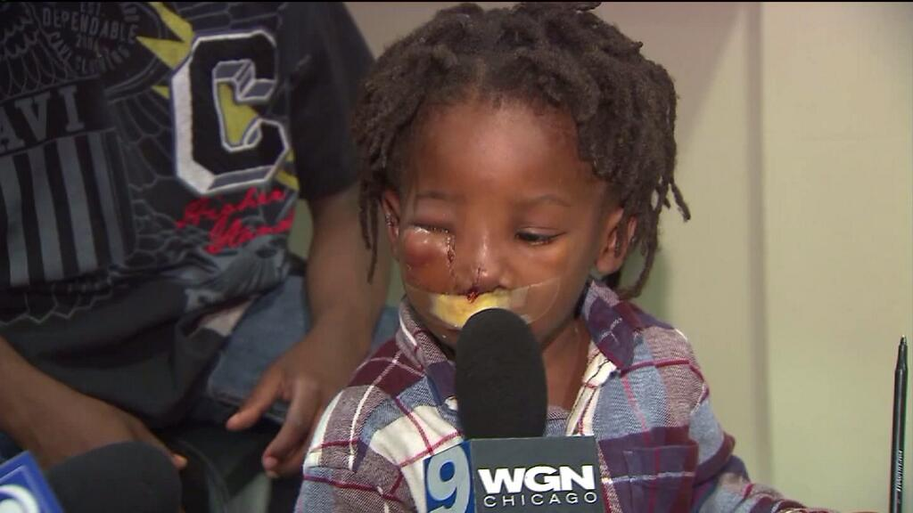 Boy, 3, injured in park shooting out of hospital; talks to WGN
