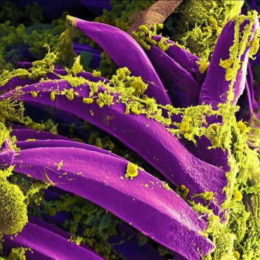 Purple-colored Yersinia pestis bacteria, the bacteria that causes the plague, seen on the spines of a flea.  Credit: National Institute of Allergy And Infectious Diseases