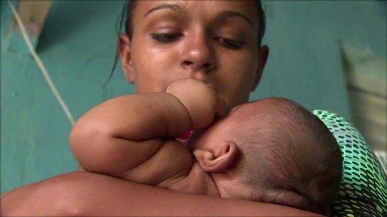 Zika Tiny Baby