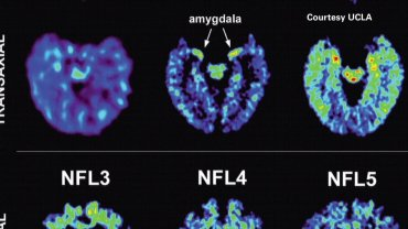 Two former NFL football players, Wayne Clark and Fred McNeill, were participants in a pilot study at UCLA that may have found a destructive protein called tau in the brains of five living retired National Football League players.