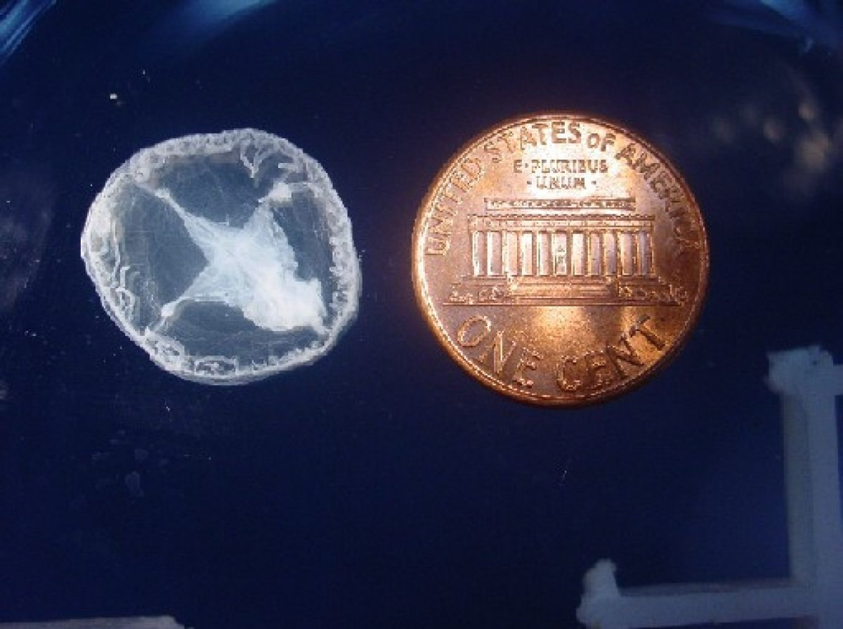 Family Finds Jellyfish While Swimming In Missouri Lake