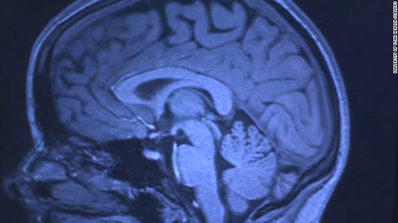 161129174602-brain-scan-mri-religion-exlarge-tease
