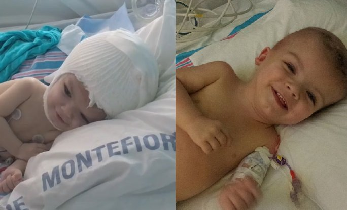 Born conjoined twins Anias (left) and Jadon (right) were separated in a 27-hour surgery at the Children's Hospital at Montifiore Medical Center in the Bronx and are recovering well.