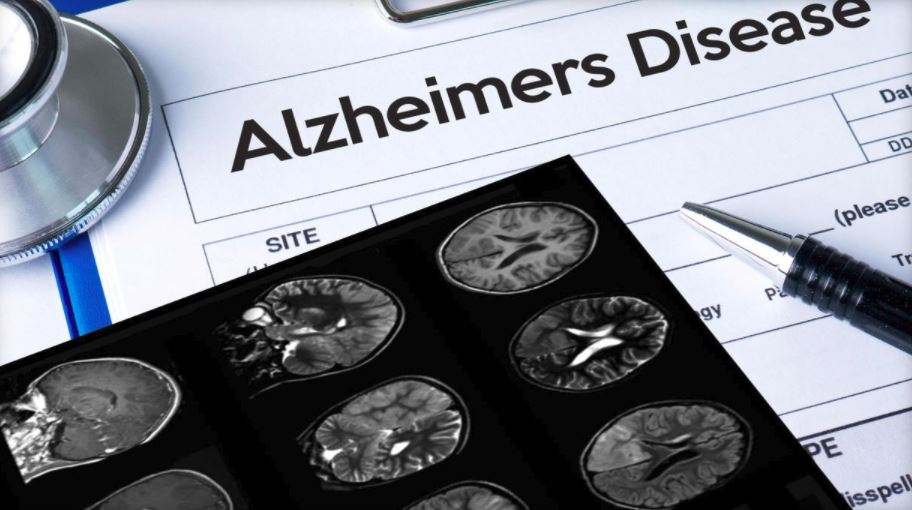 Alzheimer's costs Americans $277 billion a year - and rising