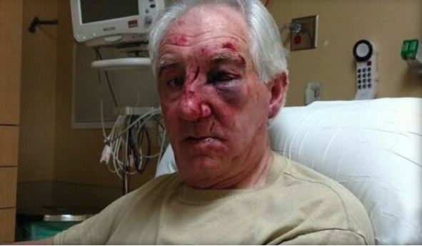 Suspect sought in road rage beating of elderly Minnesota man
