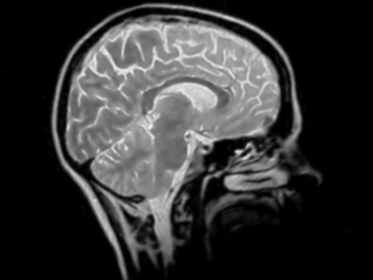 One head injury increases risk of Parkinson's, study finds class=