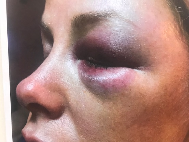 Miranda Resinos told sheriff's deputies she suffered these injuries when Kevin Gettridge beat her up in January.